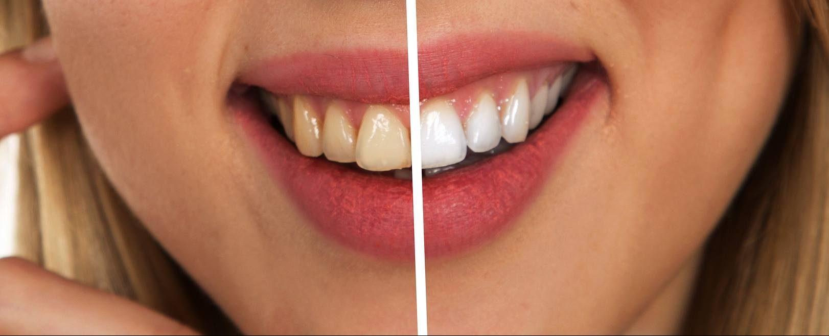 Veneers Teeth Whitening Female Model